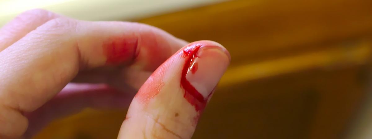 Fingerstrips Vergleich und Tipps