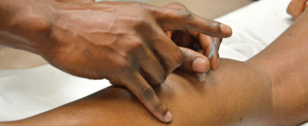 Akupunkturnadel Tipps, Vergleich und Infos